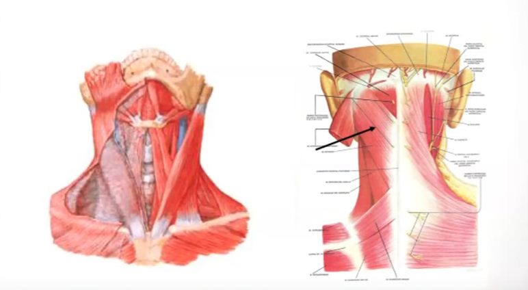 Lesiones deportivas por caídas: Esguince cervical